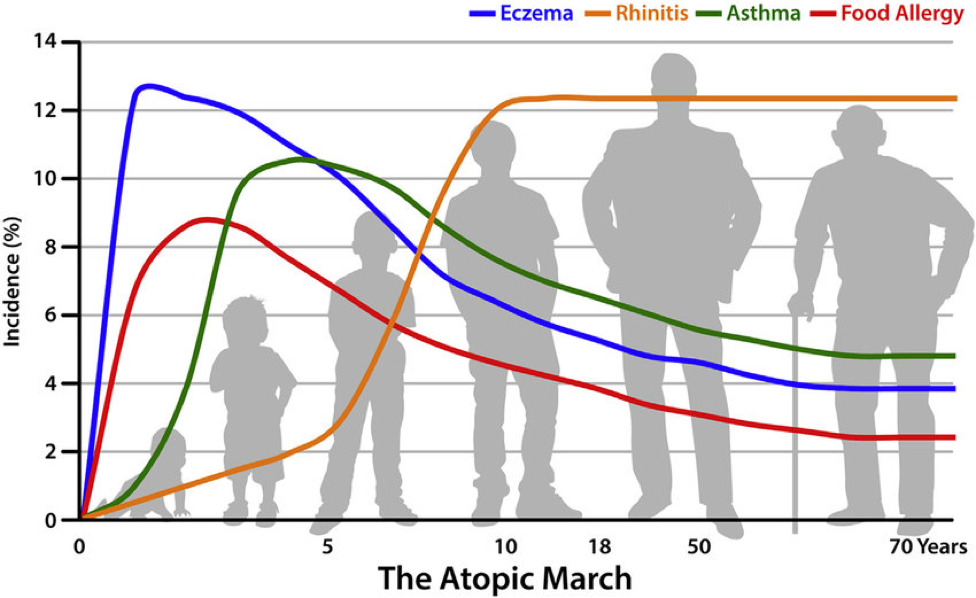 Chart showing the progression of allergic diseases as people age