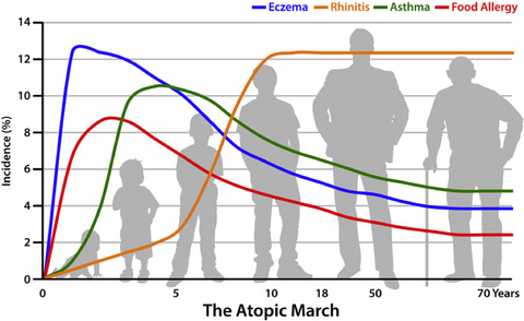 atopic march allergy progression