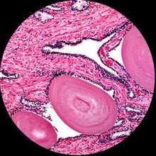 Prostate gland under a microscope.