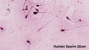 Human Sperm at 20um with the uScopeMXII-60 Digital Microscope Slide Scanner