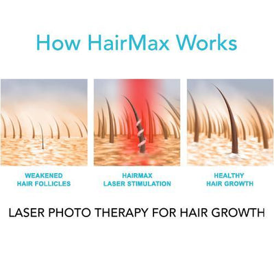 HairMax® LaserBand 82