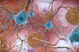 Diabetes increases neuritic damage around amyloid plaques in Alzheimer's disease