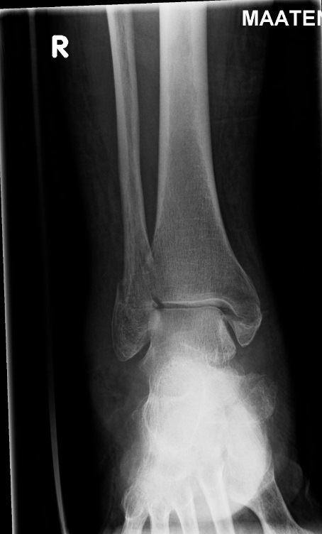 Earlier falls predict subsequent fractures in postmenopausal women