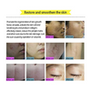 Image of Acne Scar Removal Cream
