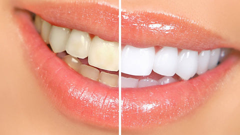 Benzi albire dinti - Dental 360 White