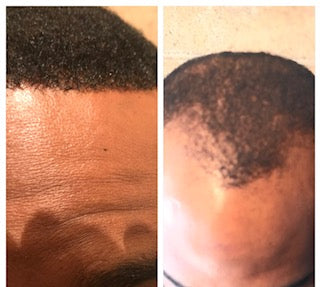 Men's Hair Replacement Class (2 Days)