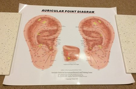 "Auricular Ear Colour Poster Frontal Ear (20""x25"")"