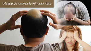 Negative Impacts of Hair Loss