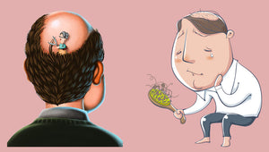 Treatments and Therapies for Hair Loss