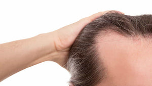 Who Can I Trust To Give Me The Best Hair Loss Treatment At A Reasonable Cost?