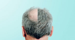 Laser Treatment For Hair Loss: Does it work?