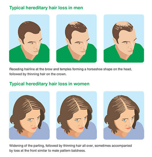 Progression of androgenetic alopecia