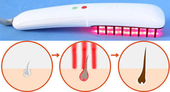 laser comb stimulates hair growth