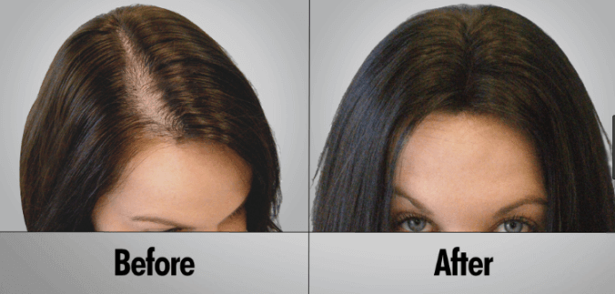 laser hair comb before and after