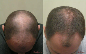 laser hair regrowth before and after