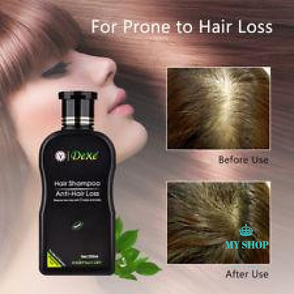 DEXE Anti-Hair Loss Hair Growth Shampooing For Men & Women - myshoponline.com