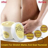Skin Body Cream Stretch Marks Remover And Scar Removal Powerful Postpartum Obesity Pregnancy Cream