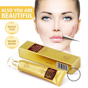 Strentch Marks Acne Scar Remover Treatment Shrink Pores Gel Bleaching Creams Whitening Accesorios
