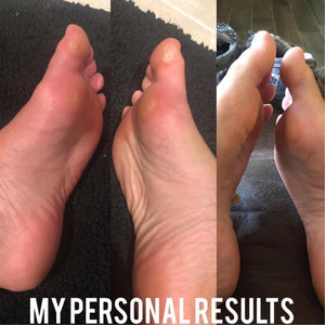 Sole Solution Foot Treatment - West Avenue