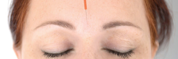 Facial Acupuncture - What Is It And Everything You Need To Know Before You Try It