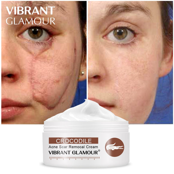 GLAMOUR Crocodile Repair Scar cream Removal Acne Scar
