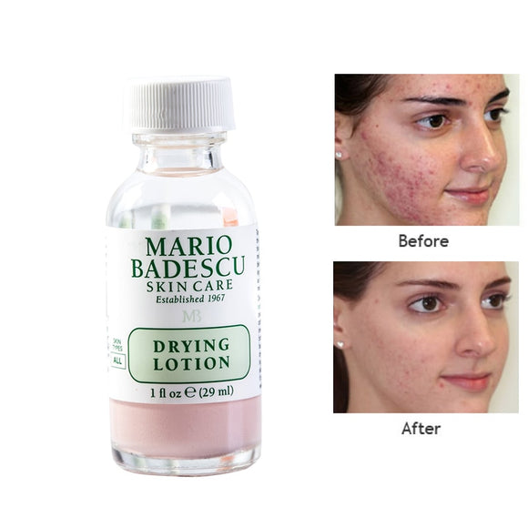 effective Acne Treatment ORIGINAL Mario Badescu Drying Lotion