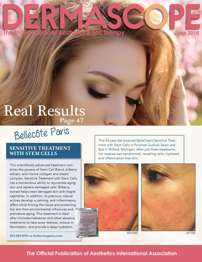 Sensitive with Stem Cells Treatment - WAVE Bye Bye TO REDNESS! - BelleCôte Paris