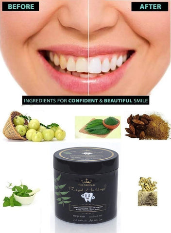 Shadow Securitronics Royal Heritage Activated Herbal Tooth Powder (40 Grms)