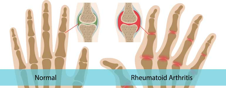 Normal vs Rheumatoid Arthritis