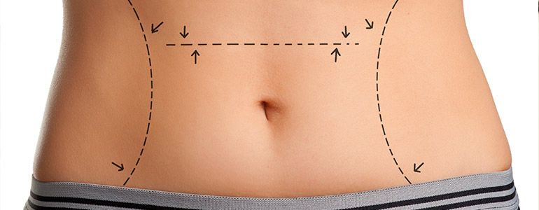 How Long Should You Wear An Abdominal Binder After Surgery
