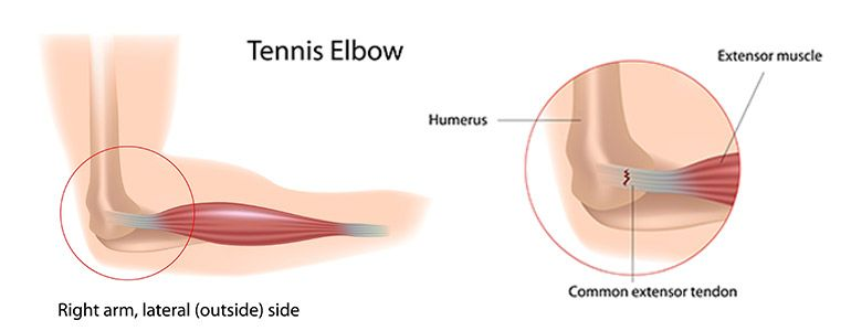 Tennis Elbow Muscle