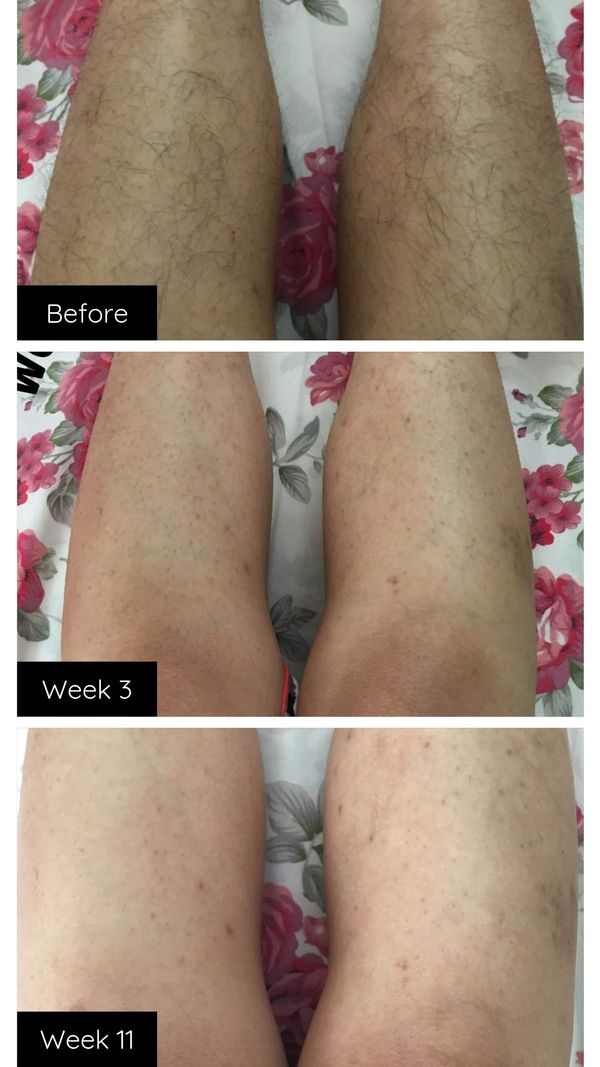 At Home Ipl Laser Hair Removal Happy Skin Co