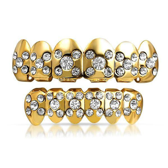 Gold Grillz Set X Ice Top Bottom