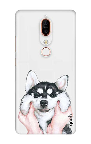 Nokia X6 Cases & Covers