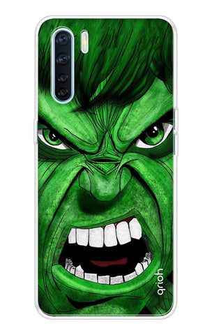 Angry Man Case Oppo A91 Cases & Covers Online