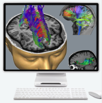 Diffusion Tensor Imaging Overlay
