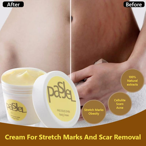 Image of scar removal cream