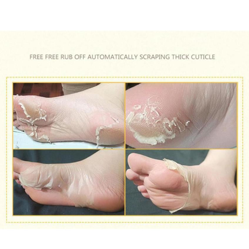 888        Hot Remove Dead Skin Foot Mask Peeling Cuticles Heel Feet Care Anti Aging