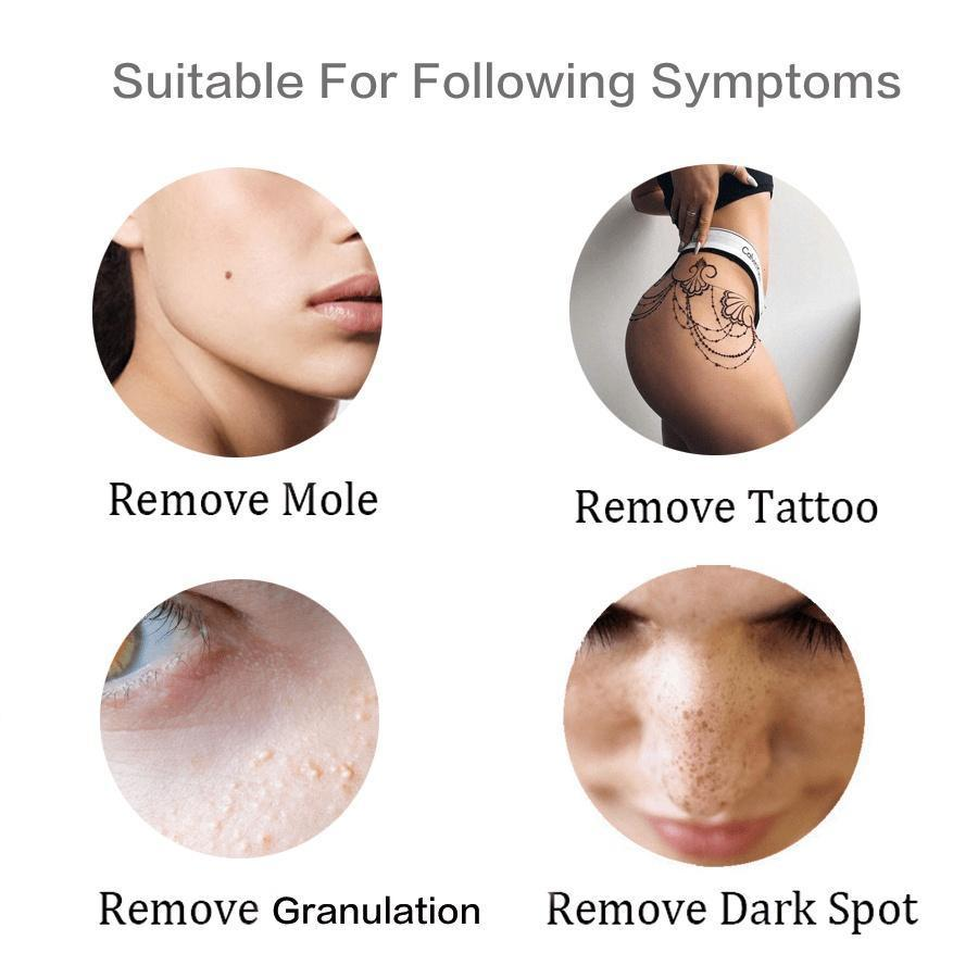 Spotless device warts and mole removal kit shopping express ph grab yours today and get ready to start feeling better in your own skin solutioingenieria Image collections