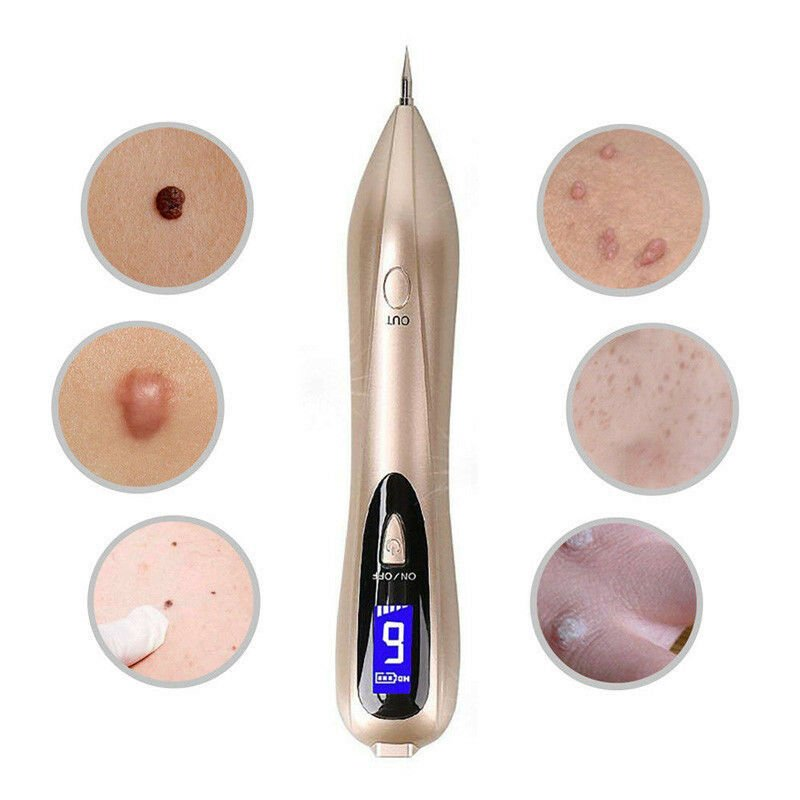 Remover Pen for Moles, Skin Tags, Warts, Age Spots, Freckles & More