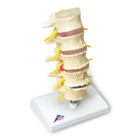 5 Stages of Vertebral Degeneration