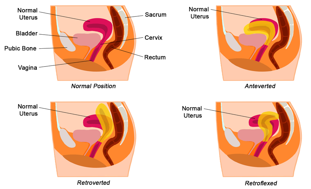 What is a tilted uterus