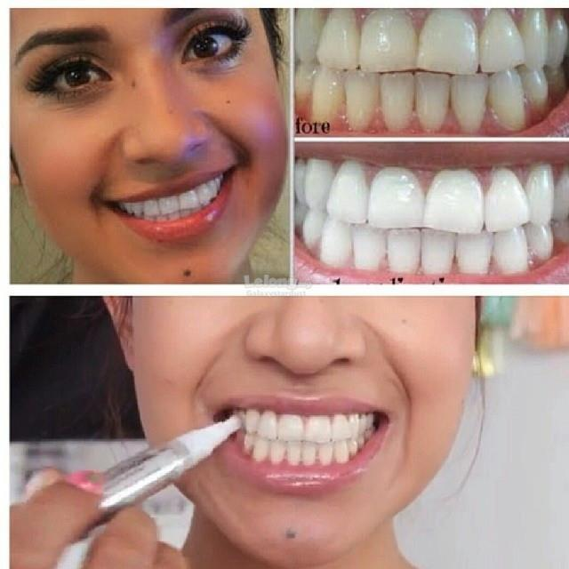 Quickly White Revolutionary Tooth Whitening Pen