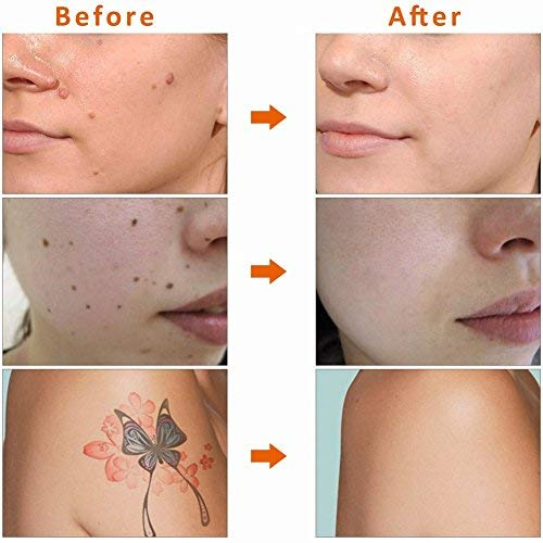 Image result for skin tag mole removal tool gif