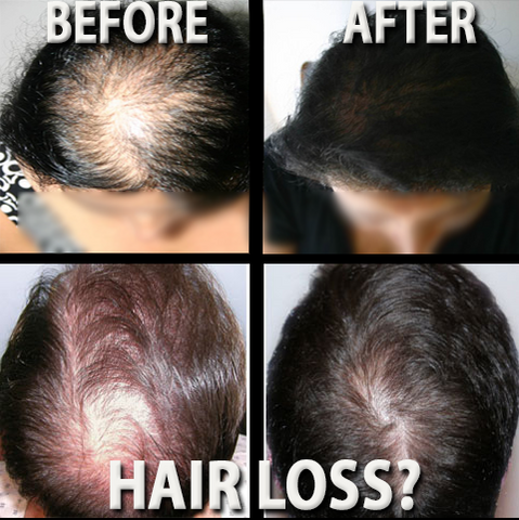 Before & After Laser Hair Treatment