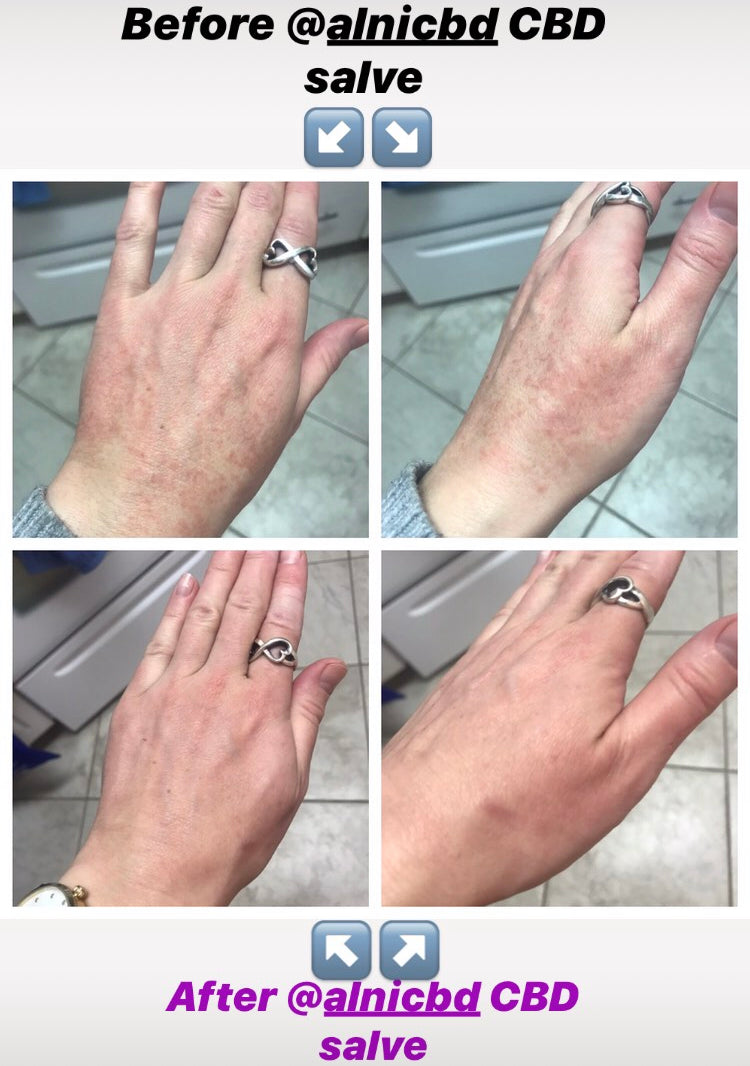 Cracked, dry skin Before and after using Alni CBD salve