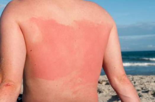 Heat rash, Sun rash — what's the difference?