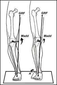 PEEL and STICK POSTS: Full Length Valgus Posts