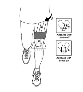The Triple Stick Strap. REDUCING KNEE PAIN. The Triple Stick Strap is helpful for managing kneecap disorders.