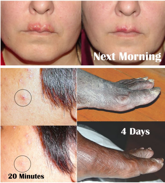 Trauma Gel Scar Reducing Face Lotion by Skin Sorcery
